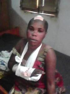 Une maman blessée qui a perdu son mari dans l'attaque de Vitimba