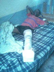 blessé de Kirumba du 28/04/2017 (1)